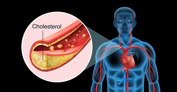Giảm cholesterol trong máu